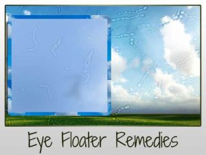 Cure Eye Floaters Naturally (Remedies from around the Web)